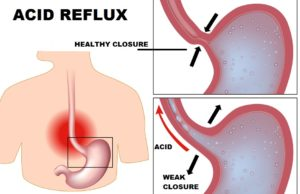 What is Acid Reflux