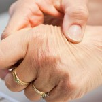 The Symptoms of Rheumatoid Arthritis on Early Stages