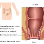 Things to Know In What Causes Hemorrhoids
