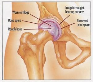Treatment for Hip Arthritis
