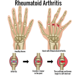 The Different Types of Arthritis in Recent Years