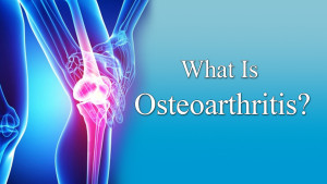 what is osteo arthritis