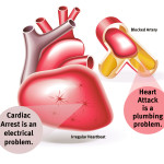 The Information about the Differences of the Cardiac Arrest VS Heart Attack Disease