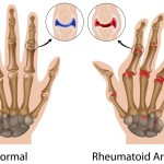 Does Cracking Knuckles Cause Arthritis? Some Detail To Know