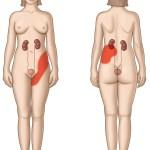 The Relation of Kidney Pain VS Back Pain