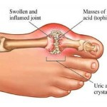 The Natural Remedies for Gout That You Can Do At Home
