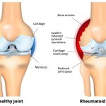 How to Differ Rheumatoid Arthritis Vs Osteoarthritis With Some Details