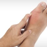 What Does Gout Look Like: Some Details Of The Disease
