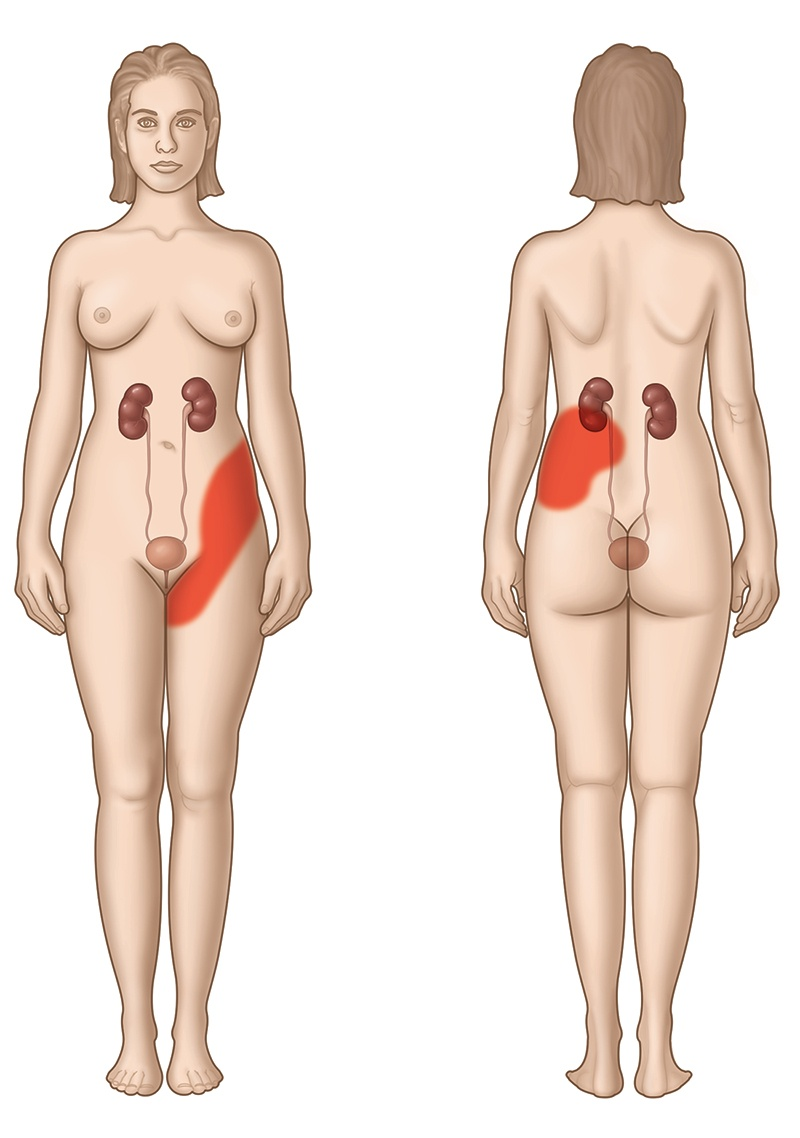 The Relation Of Kidney Pain Vs Back Pain Natural Treatment